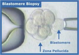 Biopsy Patient