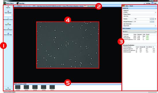CASA II IVOS Human screen overview